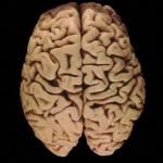 Υλικό για τη διδασκαλία του Νευρικού Συστήματος – Εγκέφαλος