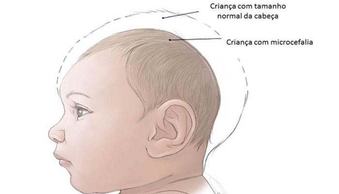 bebe-com-microcefalia
