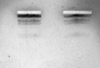 Ζώνες DNA μετά από χρώση με τη χρησιμοποίηση υλικών καθημερινής χρήσης [Πηγή: Άρθρο στο Biochemistry and Molecular Biology]
